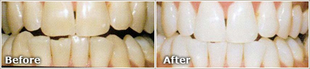 Genetic Stains Before and After Whitening