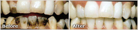 Smoking Stains Before and After Whitening