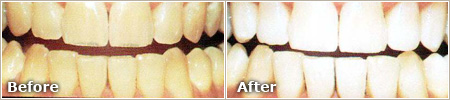 teeth stained by aging before and after teeth whitening treatment
