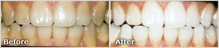 Tetracycline Stains Before and After Whitening