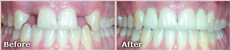 missing teeth replaced by dental implants before and after treatment