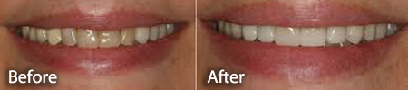 before and after for stained teeth and teeth whitening treatment