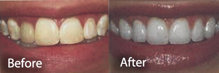 stained and whitened teeth before and after a teeth whitening treatment