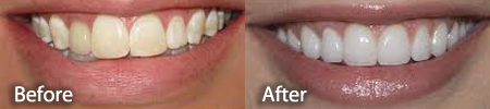 slightly yellowed teeth before and after a teeth whitening treatment