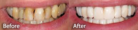 severely stained teeth before and after a teeth whitening treatment