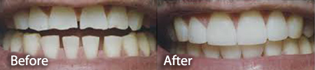 gapped and damaged teeth before and after treatment