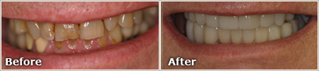 patient with discolored and damaged teeth before treatment and straight, white teeth after treatment