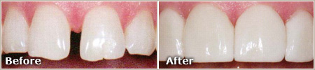 gapped front teeth before treatment, evenly placed and proportional teeth after treatment