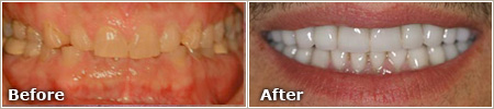 dull, gummy and uneven teeth before treatment; even, white and properly aligned teeth after treatment