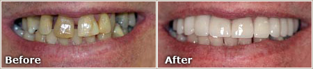 wide gaps and severe staining of the teeth before treatment, even and white teeth after treatment