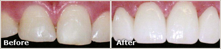 slightly dull and uneven teeth before treatment, even and white teeth after treatment